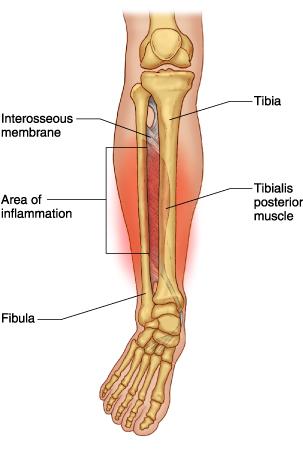 weak ankles – Dr. Justin Hildebrand