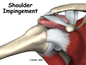 shoulder_impingement_intro01