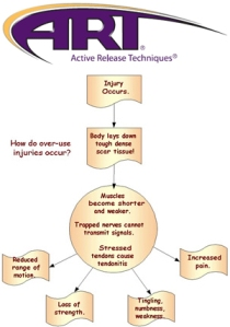 active_release_technique